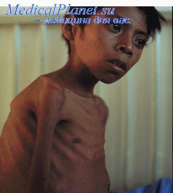 Туберкулез у ребенка