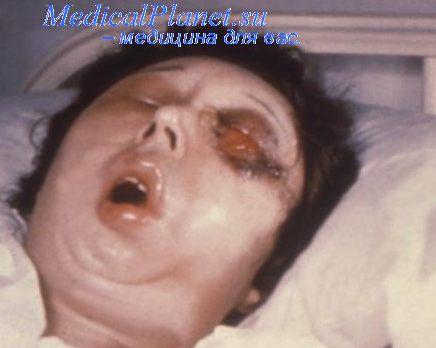 Клиника сибирской язвы