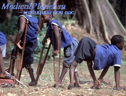 полиомиелит фото больных детей