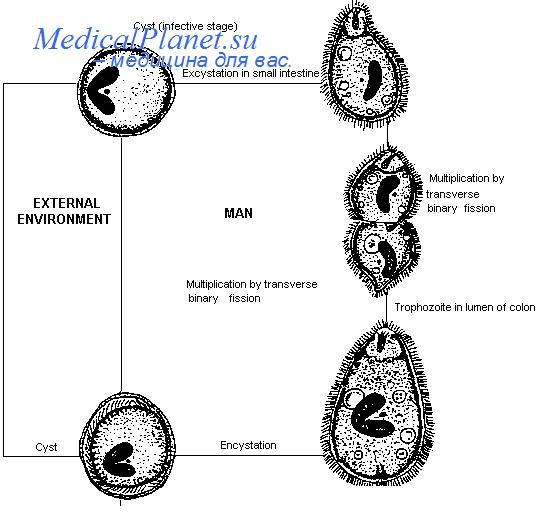 балантидиаз симптомы