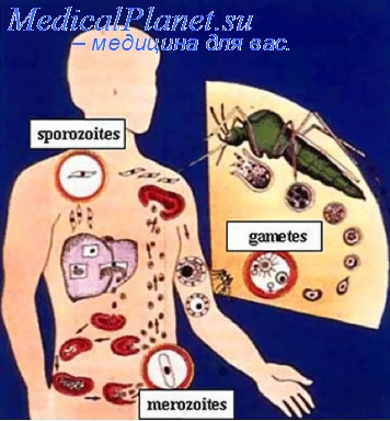Лечение и профилактика лямблиоза. Малярия у детей