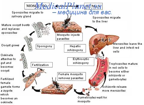 Осложнения детской малярии. Анемия малярии у детей