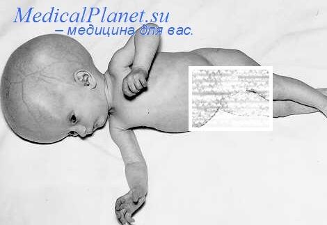 Лечение детского токсоплазмозом. Профилактика токсоплазмоза у детей