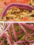 Эпидемиология криптоспоридиоза
