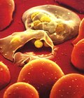 Эпидемиология малярии.