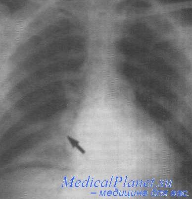 пневмония снимки - прочее.