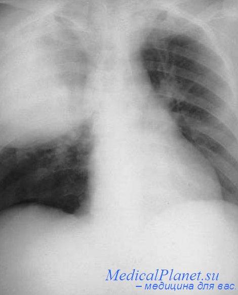 В соответствии с принятыми в настоящее время критериями, к нозокомиальнои пневмонии (НП) относят лишь случаи...