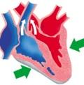 сокращение сердца