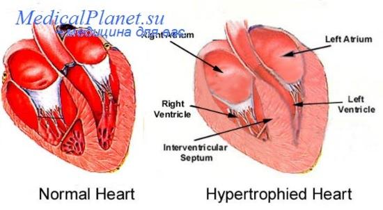 как лечить повышенный холестерин