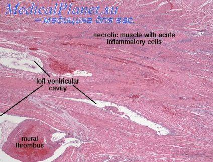 Модель изучения гипертрофии миокарда.  Формирование искусственного стеноза аорты.