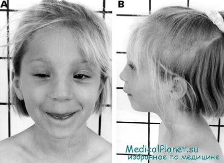 чесотка у ребенка симптомы фото