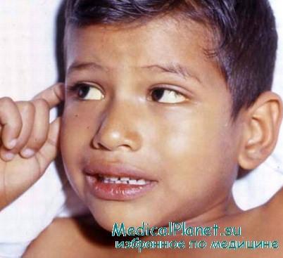 доктор комаровский запах ацетона изо рта