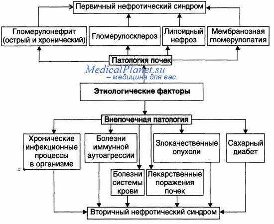 нефротического синдрома