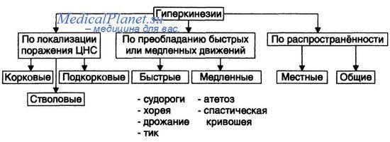 Виды гиперкинезов