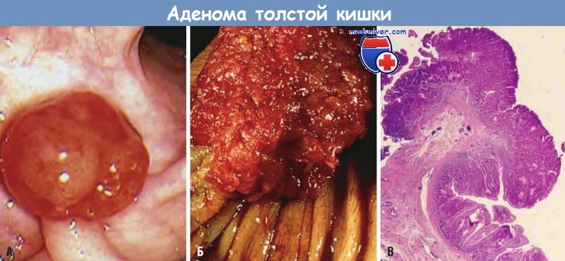 Аденома толстой кишки