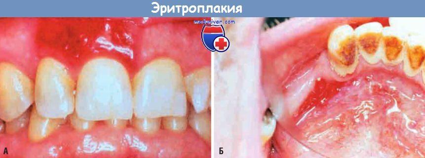Предраковые поражения и состояния слизистой полости рта