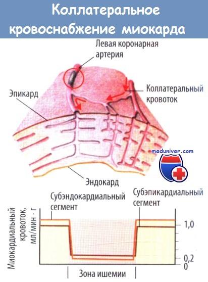 Коллатеральное кровоснабжение миокарда
