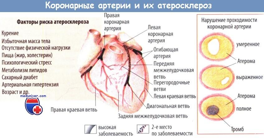 Коронарные артерии и их атеросклероз