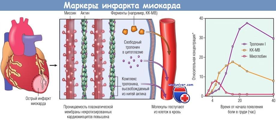 Маркеры инфаркта миокарда