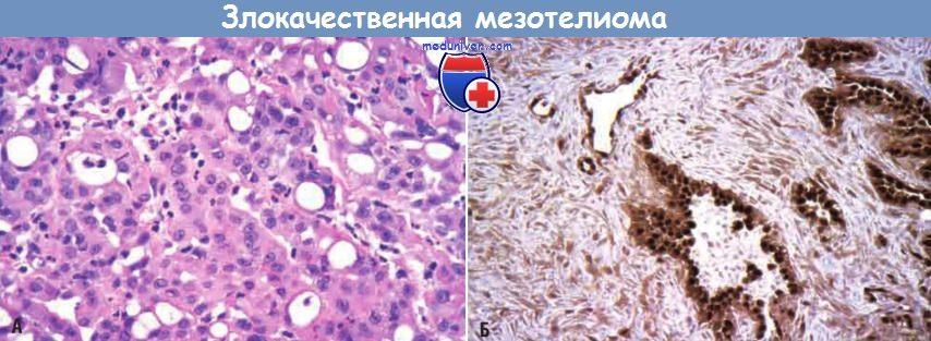 Гистология злокачественной мезотелиомы