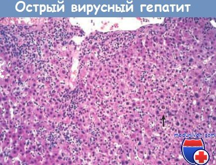 Морфология острого вирусного гепатита