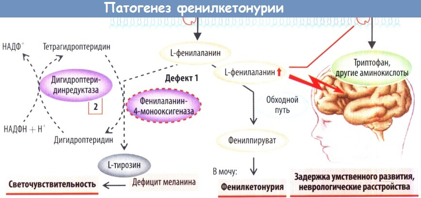 Механизмы развития фенилкетонурии (патогенез)