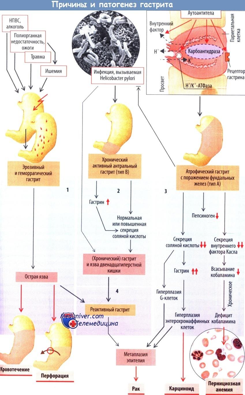 Причины и патогенез гастрита