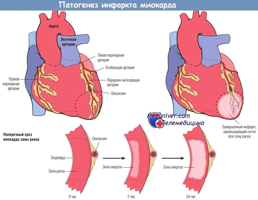 патогенез инфаркта миоркада
