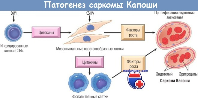 Патогенез саркомы Капоши