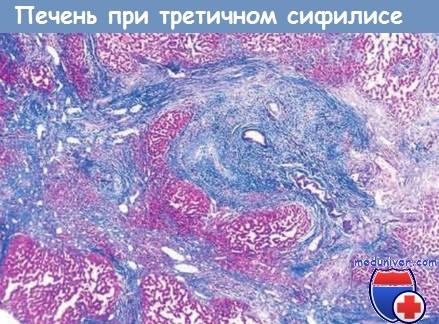 Печень при третичном сифилисе
