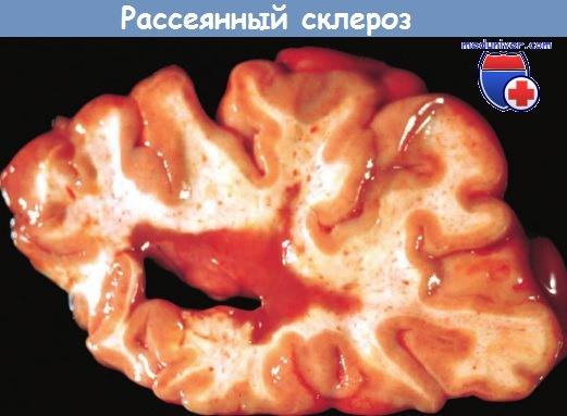 Механизм развития (патогенез) рассеянного склероза