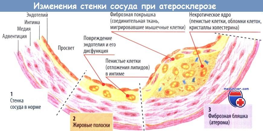 Пенистые клетки атеросклероз