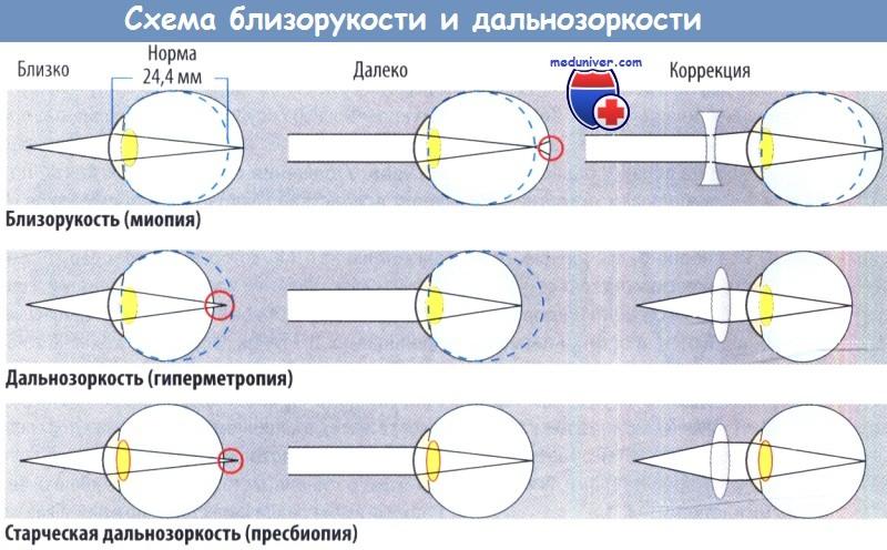 Схема развития болезней глаз - близорукости, дальнозоркости ...