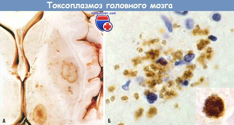 Механизм развития (патогенез) токсоплазмоза головного мозга