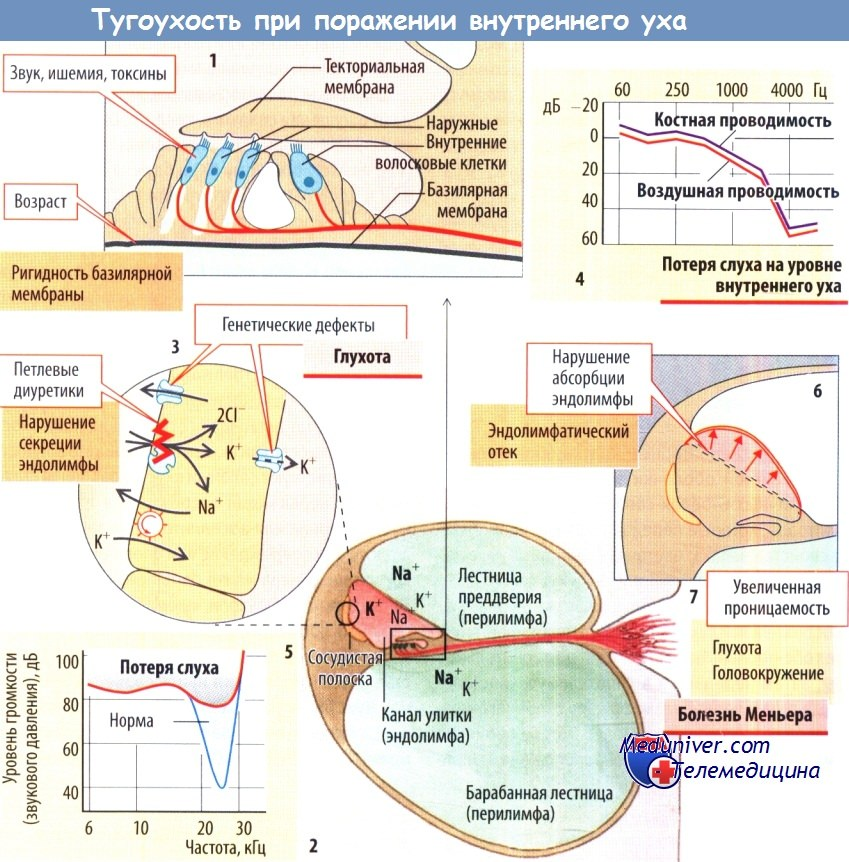 Патогенез нейросенсорной тугоухости
