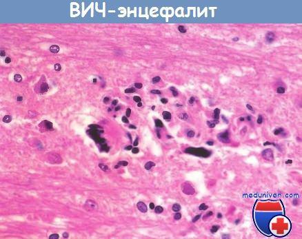 ВИЧ-энцефалит