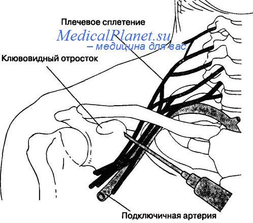 как ставят блокаду в плечевой сустав