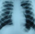 рентгенография при митральном стенозе