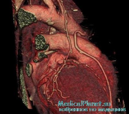 КТ при инфаркте миокарда