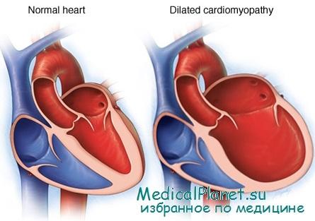 Причины ДКМП. Алкогольная кардиомиопатия