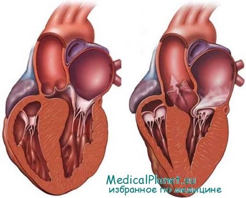 Дифференциация гипертрофической кардиомиопатии. Отличие ГКМП от ...