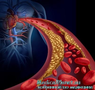 границы нормы холестерина в крови