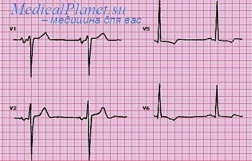 Увеличение правого желудочка. Дилатация и гипертрофия правого ...