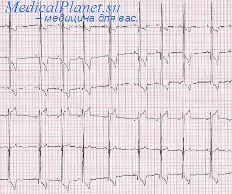 Изменения на ЭКГ при гипетрофии правого желудочка. Признаки ...