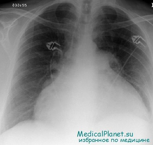 Диагностика и лечение тампонады сердца
