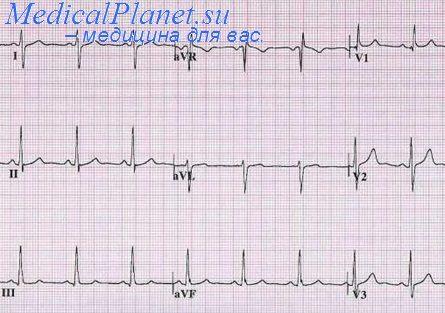 ЭКГ при увеличении правого желудочка. Методы диагностики ...