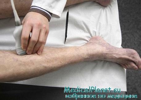 Мазь от варикозного расширения вен на ногах