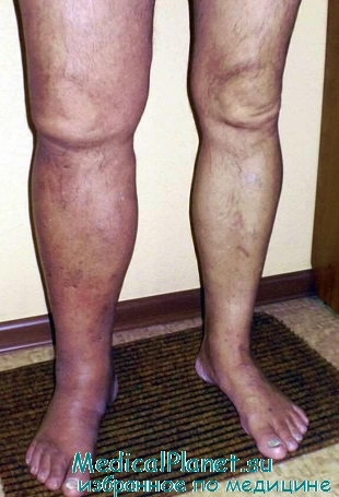 Лечение тромбоза глубоких вен нижних конечностей. Профилактика