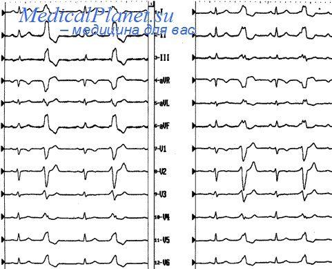 Что такое не g инфаркт миокарда