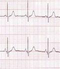 нарушения ритма сердца